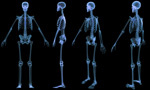 A skeletal xray from 4 diferent views.