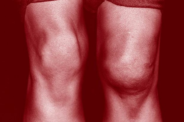 A close up of a swollen knee injured in sports
